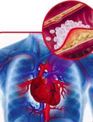 Consumul de tigari si efectele negative asupra inimii si sistemului vascular
