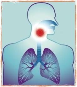 Tratament pentru laringita